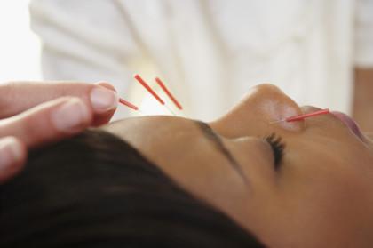 Akupunktur - Daniela Hanisch